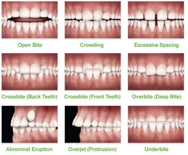 矯正牙齒初期症狀