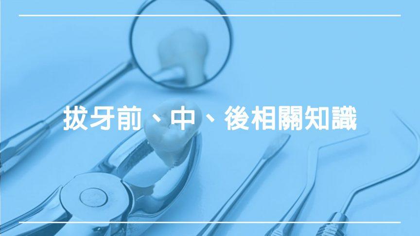 拔牙:治療前、中、後所需要的相關知識