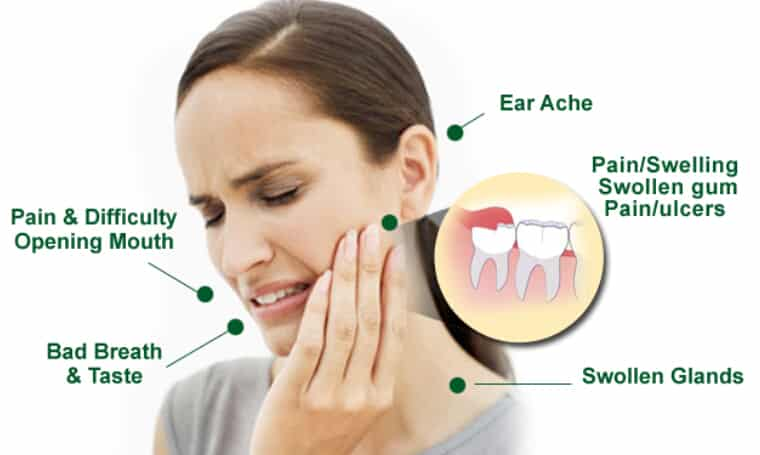 智齒清潔不易引起感染