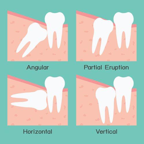 智齒生長方式