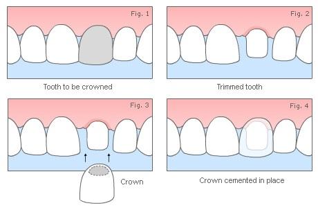 牙冠製作步驟圖