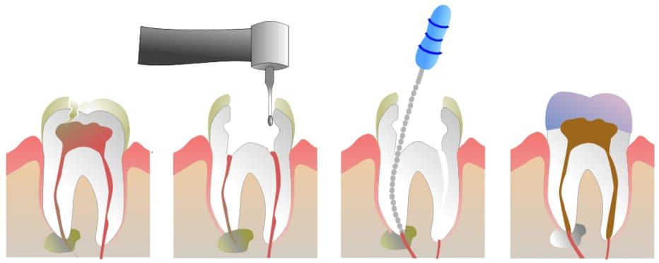 牙根治療方式