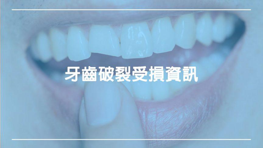 牙齒破裂:破損、破裂牙齒該怎麼辦