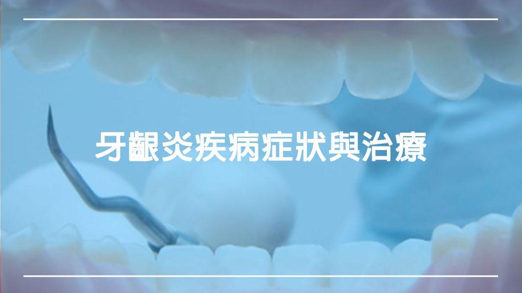 牙齦炎:瞭解疾病症狀與治療