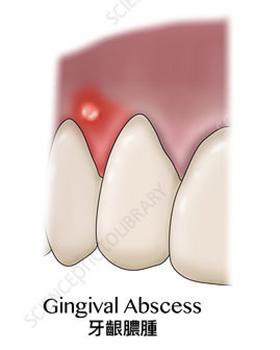 種類一牙齦膿腫