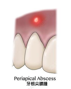 種類三牙根尖膿腫