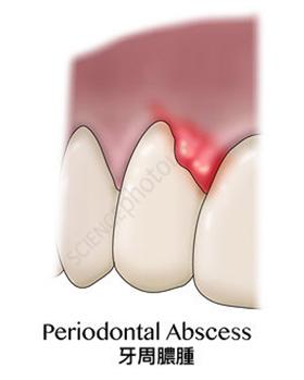 種類二牙周膿腫