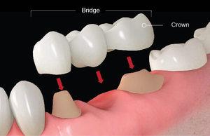 傳統式牙橋