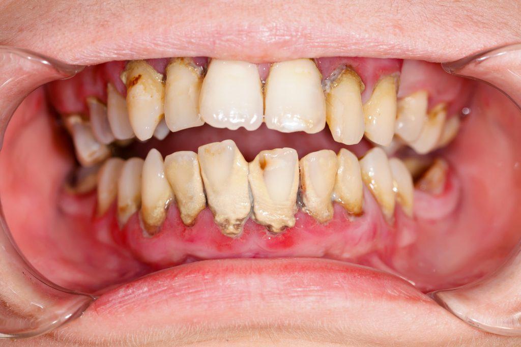 牙齦發炎疾病