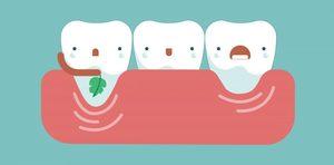 牙齦萎縮的牙齒