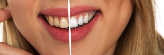 牙齒美白前後差異