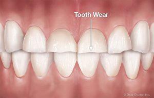 幼童夜晚磨牙導致牙齒磨損