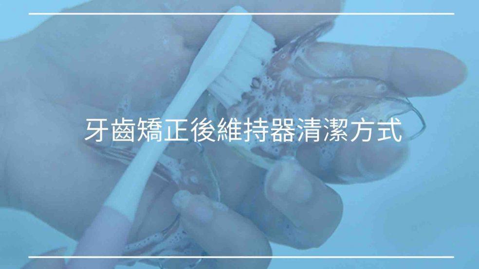 牙齒矯正後維持器清潔方式