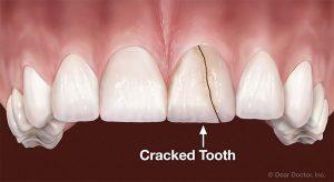 牙齒破裂形狀
