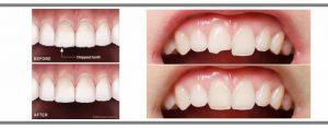 修復缺角牙齒前後