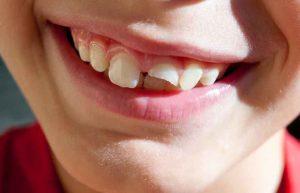 孩童牙齒斷裂