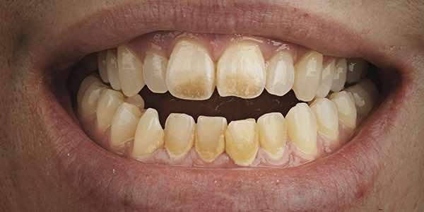 抽煙導致牙齒變色