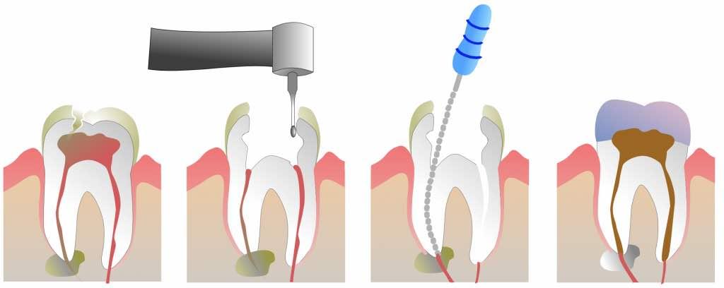 牙齒根管技術步驟