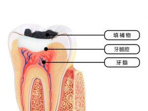 牙齒軟組織圖片介紹
