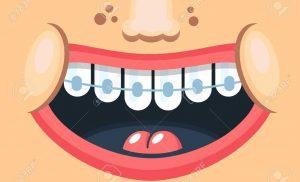佩戴傳統牙套矯正牙齒