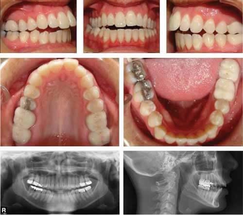 牙齒矯正前資料搜集圖片