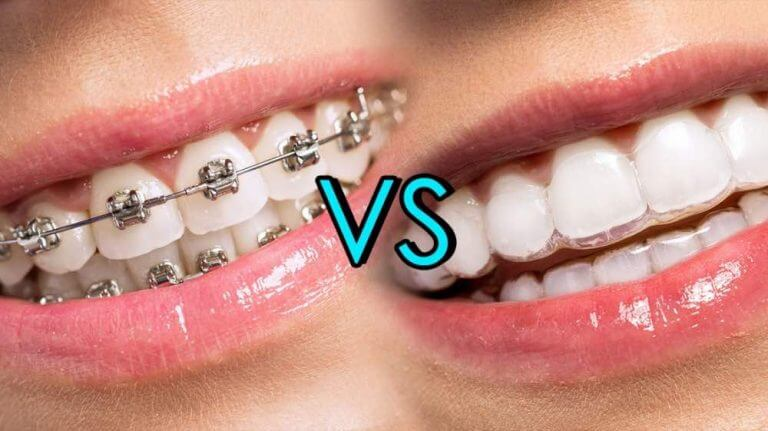 隱形牙套與傳統牙套比較