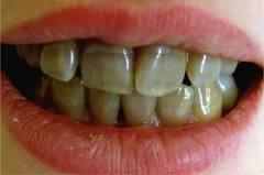 四環黴素牙齒變色