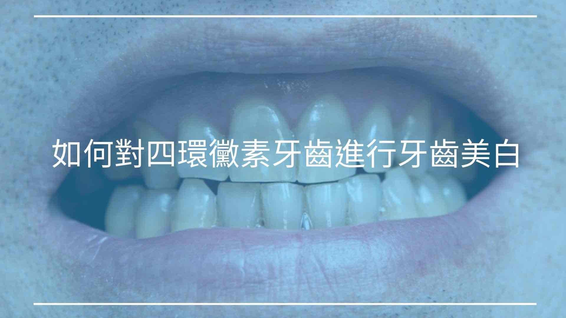 如何對四環黴素牙齒進行牙齒美白