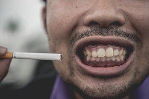 拔牙後請勿吸菸