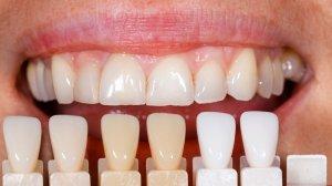 牙齒美白顏色選擇