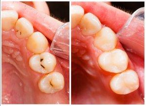 補牙的選擇