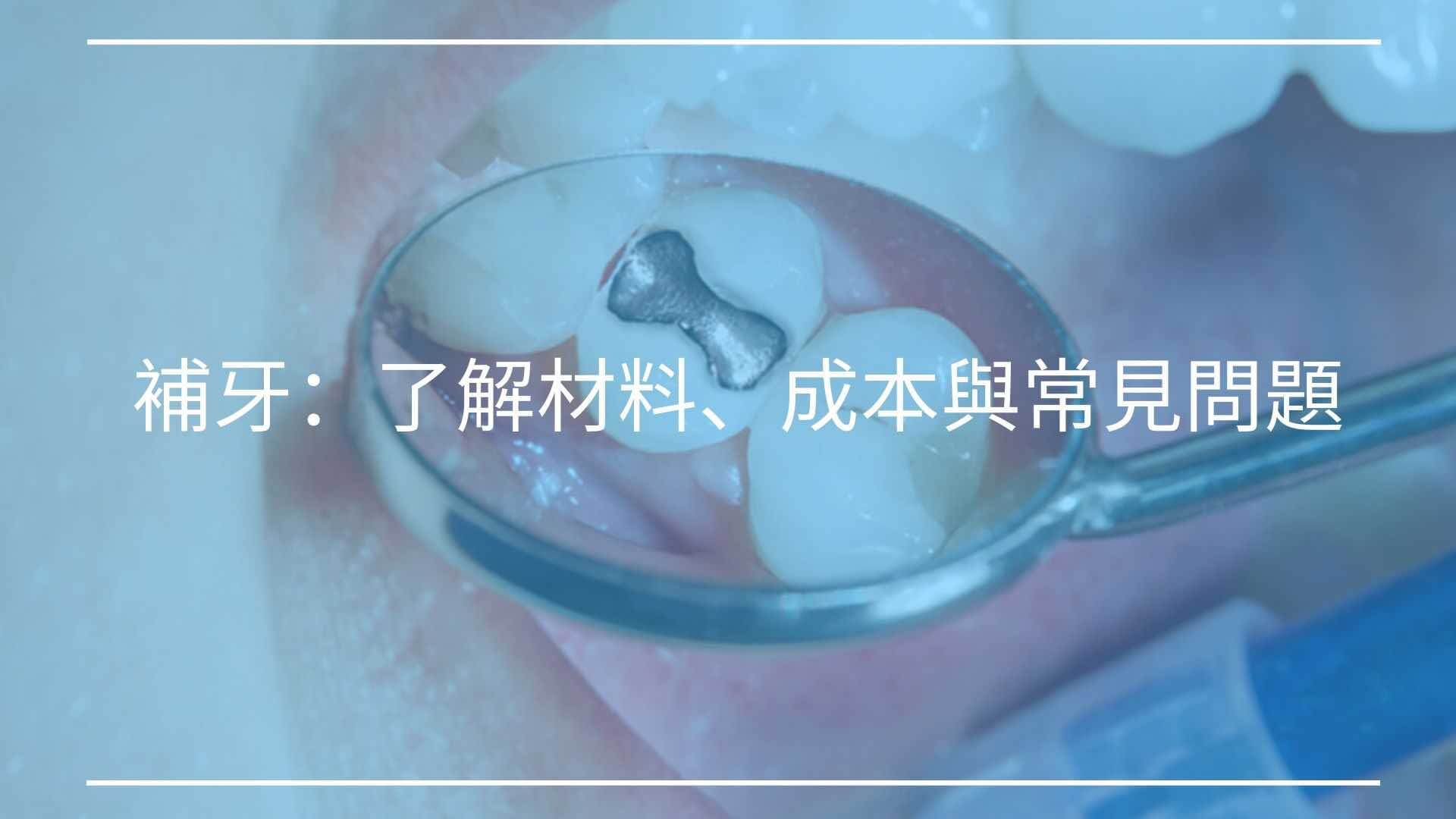 補牙:了解補牙材料、成本與補牙後常見問題