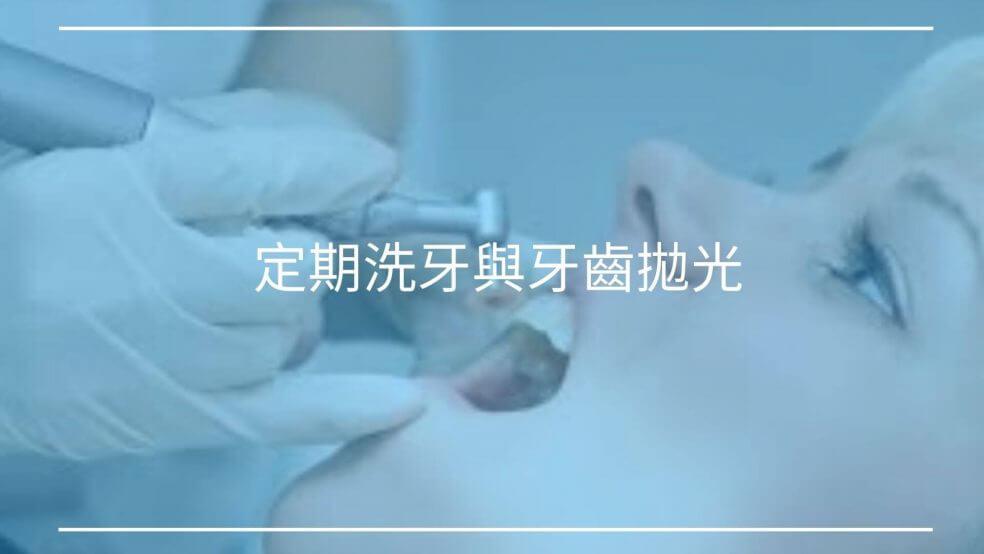 定期洗牙與牙齒拋光差別是什麼