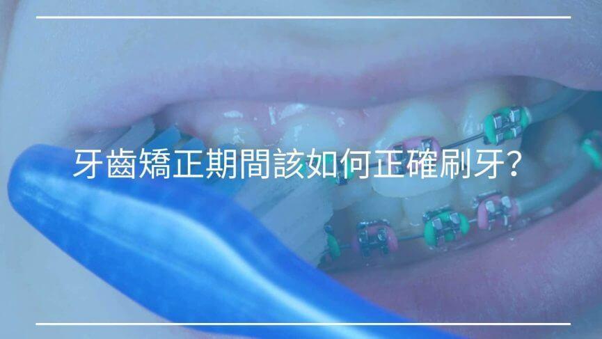 牙齒矯正期間該如何正確刷牙?