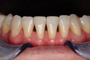 矯正後牙齒產生牙縫